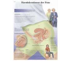 Print 3B Rehab Female Urinary Incontinence