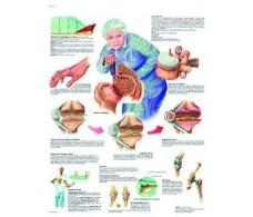 Print 3B Rehab Osteoarthritis