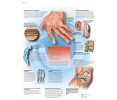 Print 3B Rehab Rheumatic Diseases