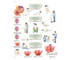 Print 3B Rehab Childbirth