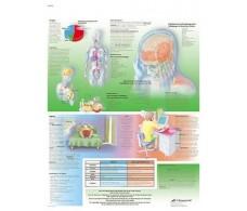 Print 3B Rehab Headaches